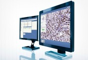 http://www.global-engage.com/life-science/how-to-implement-machine-learning-to-reap-true-advantages-in-pathology/