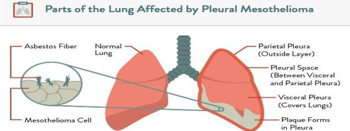 Asbestos, Mesothelioma, Lungs, Cells